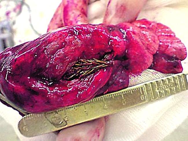 arbol pulmon