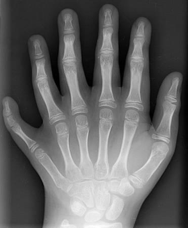 6-dedos1